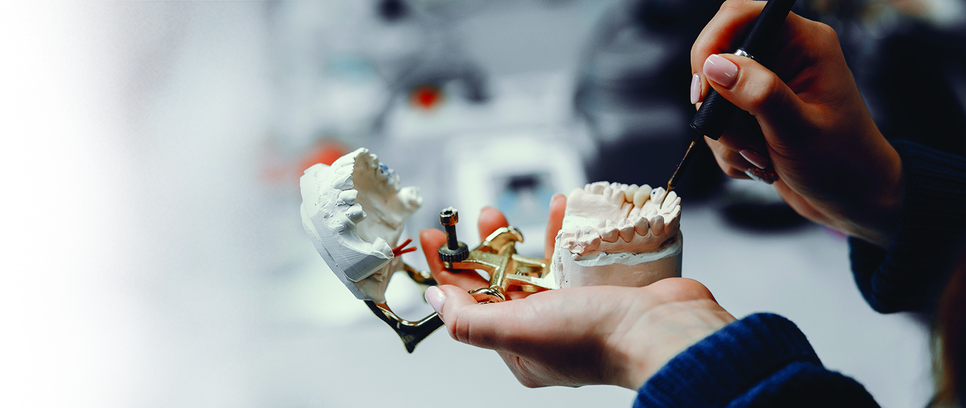 Dental Implants & Replacement Options